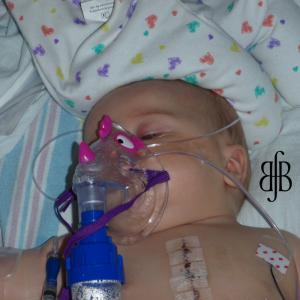 Wyatt, after heart surgery