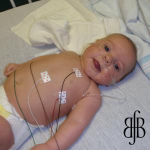 Wyatt before heart surgery
